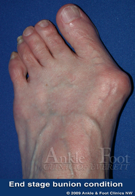 End stage bunion